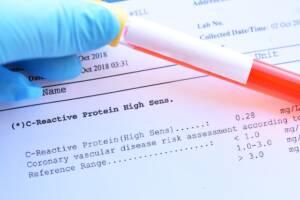 Immunologischer Trübungstest zur quantitativen Bestimmung von Human-C-reaktiven Protein