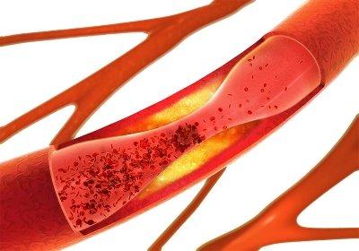 Reagenzien für die Diagnostik von koronaren Erkrankungen
