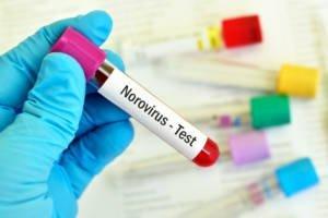 Norovirus Schnelltest