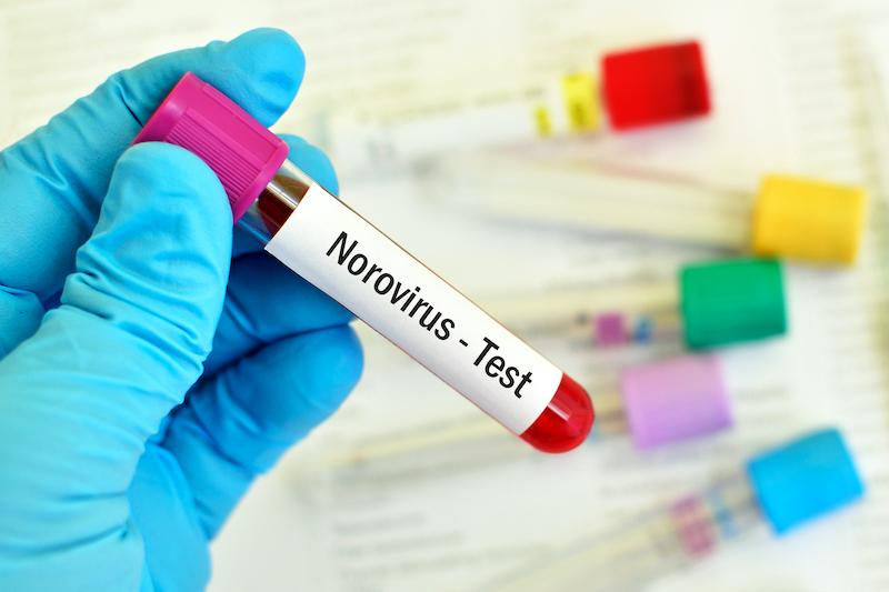 Schnelltest zur Diagnose von Norovirus, Rotavirus und ...