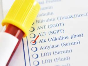 Klinisch-chemischer Test Alkalische Phosphatase