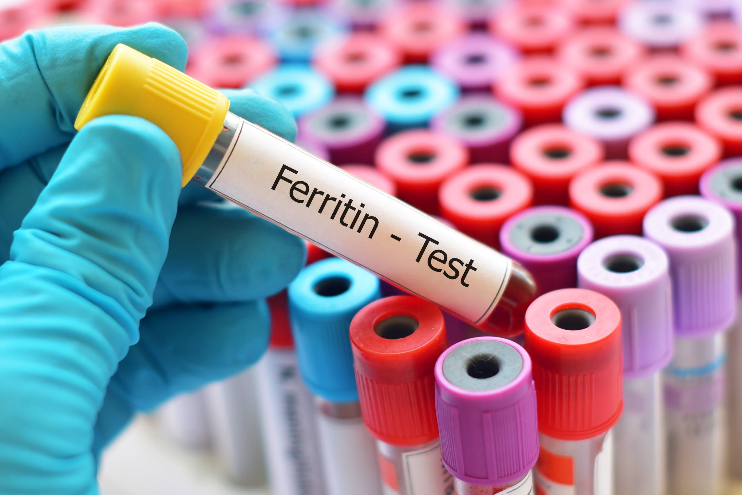 Ferritin concentration is associated with COVID-19 disease progression.